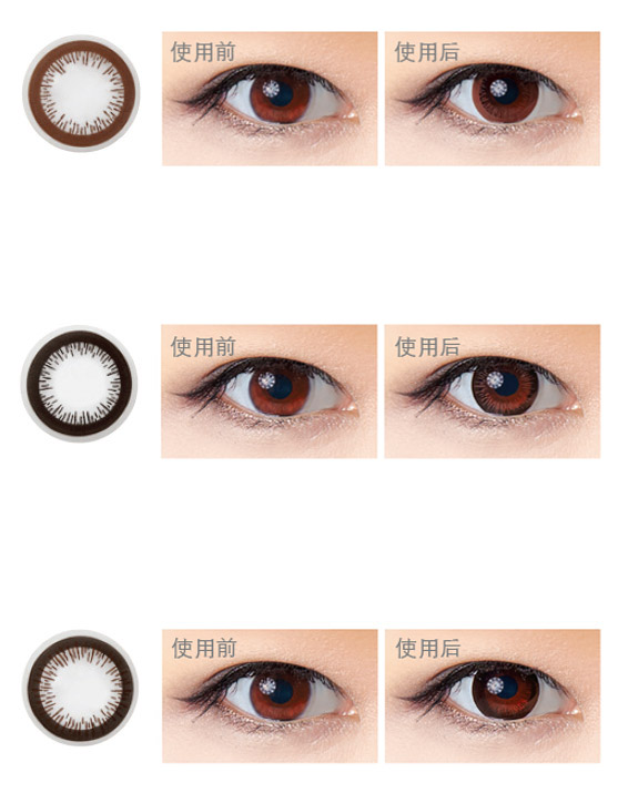 Limbal Ring Eye